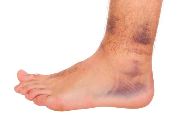 Bruising from sports injuries
